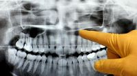 Izguba čeljustne kosti